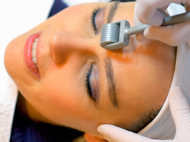 Fractional - Μεσοθεραπεία στο Beauty Rays Κοζάνη